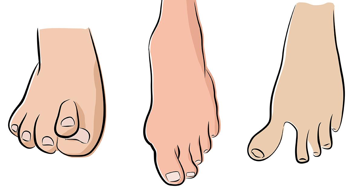 abnormal feet