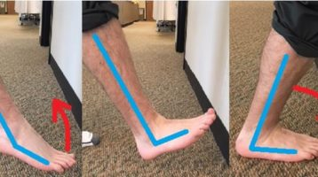 Keeping ankle flexible can help avoid common painful conditions